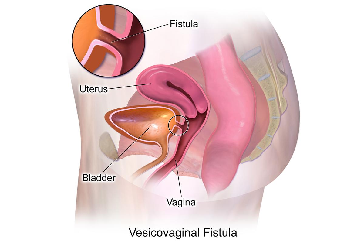 Read more about the article Vesicovaginal Fistula (VVF)